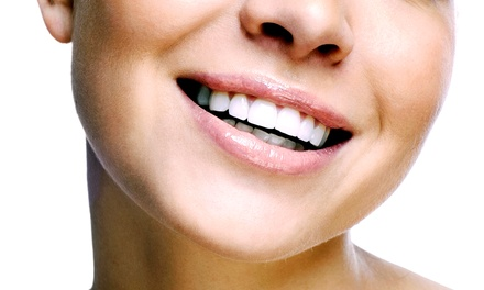 One or Two Zen Signature Whitening Treatments at Zenthea Dental Spa (Up to 85% Off)