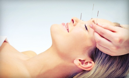 $39 for Anti-Aging Acupuncture Facial at Contempo Chiro Med Spa ($149 Value)