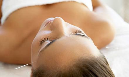 Four or Eight Face-Lift Acupuncture Sessions at Schwan Chiropractic & Acupuncture (Up to 87% Off)