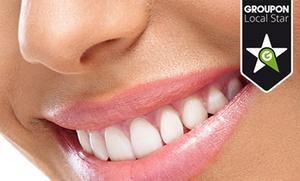 Blanqueamiento dental LED por 59,95 € o añade revisión y limpieza con ultrasonidos por 69,95 €