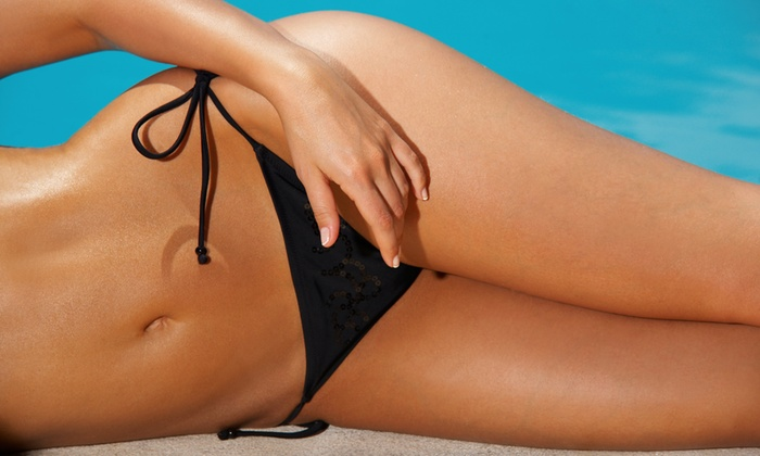 Tropicalaser - Multiple Locations:  for Six Laser-Hair Removal Treatments on a Small Area at Tropicalaser ( Value)