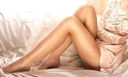 $750 for Three Laser Stretch-Mark-Removal Sessions at Valley Legs Beauty and Diagnostics ($1,800 Value)