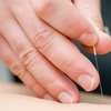 Up to 52% Off Acupuncture from Points of LIfe