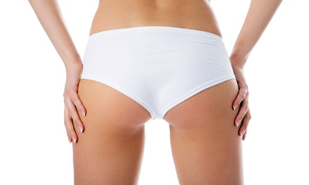2, 4, 8, or 10 Sections of Noninvasive Butt Liposuction at Derma Skin (Up to 53% Off)