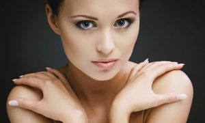 Greenspring Rejuvenation: $99 for 20 Units of Full-Strength, FDA Approved Botox at Greenspring Rejuvenation ($240 Value)