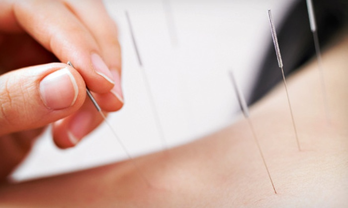 Whole Self Healing with TCM Acupuncture, Herbs, and Massage - Mill Valley: $69.01 for Acupuncture and Massage Session at Whole Self Healing with TCM Acupuncture, Herbs, and Massage ($140 Value)