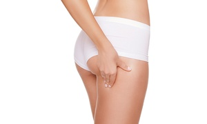 Lift and Tuck: Five Cellulite Treatment Sessions from R437 for One at Lift and Tuck (Up to 75% Off)