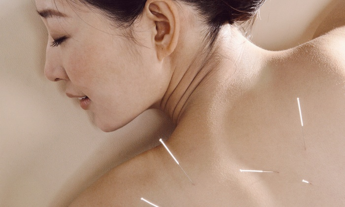 Acupuncture Herbs and Beyond - Natick: Two or Four Acupuncture Sessions, Facial, or Health Consultation at Acupuncture Herbs and Beyond (Up to 75% Off)
