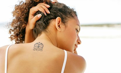 Three Sessions of Laser Tattoo Removal on a Choice of Areas at Sheffield Laser (Up to 81% Off)