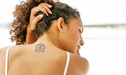 Three Tattoo-Removal Treatments at DermaSpa Laser (Up to 73% Off). Three Options Available.