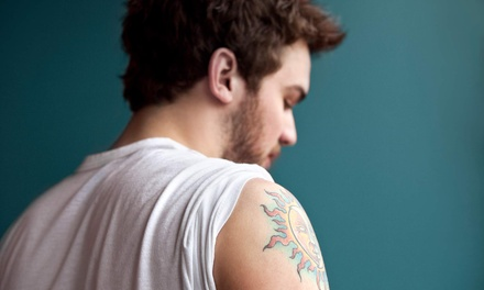 Three Laser Tattoo-Removal Sessions for Up to 3, 6, or 12 Sq. In. at Pure Medical Spa (Up to 86% Off)