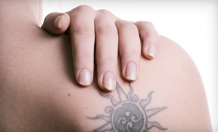 Dallas: Laser Tattoo Removal for 3-, 6-, or 12-Square-Inch Area at Derma-Aesthetic Laser and Electrolysis Center (Up to 75% Off)