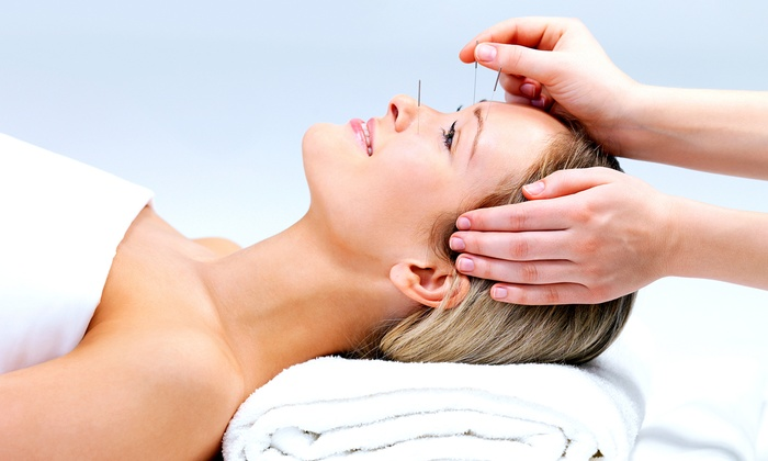 Ding's Acupuncture, Massage & Herbs - Bellevue: One or Three 60-Minute Acupuncture Treatments at Ding's Acupuncture, Massage & Herbs (Up to 83% Off)