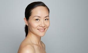 Rejuvenecimiento facial con biorevitalización y opción a tratamiento de ojeras desde 59 € en Nutri10Beauty