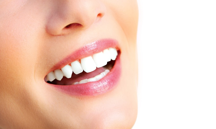 Riverwoods Smiles - Riverwoods: $79 for $415 Worth of Take-Home Teeth Whitening — Riverwoods Smiles
