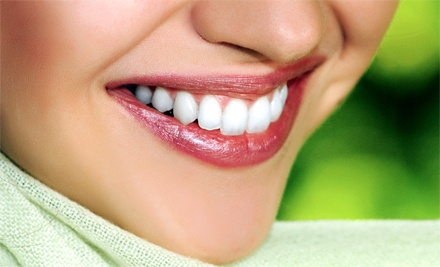 $49 for Two Solar White Teeth-Whitening Treatments at Saggio Spa ($190 Value)