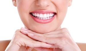So white & spa: 1 blanchiment dentaire de 30 ou 45 minutes dès 19,90 € chez So White & Spa