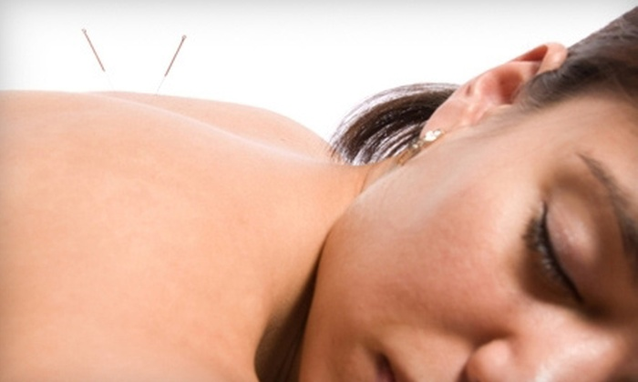 Chad Johnson Acupuncture - Asheville: $55 for 90 Minutes of Pain Therapy using Medical Massage at Chad Johnson Acupuncture ($100 value)