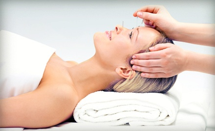 Exam and One 30-Minute Acupuncture Treatment  (a $190 value) - Way of Wellness in San Jose