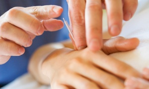 Equilibrio TCM: Consultation and One or Three One-Hour Acupuncture Sessions at Equilibrio TCM (Up to 68% Off)