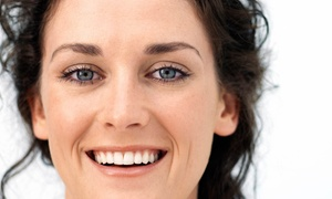 Exam With X-rays And Cleaning Or Zoom! Whitening Treatment At Alavi Dentistry (up To 87% Off)