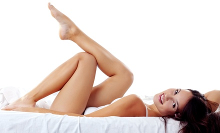 Two or Four Laser Spider Vein-Removal Treatments for the Legs (Up to 69% Off)