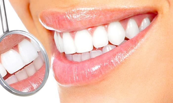 CARMEN RUIZ CLINICA DENTAL - Carmen Ruiz Clínica Dental: Limpieza bucal con uno o dos barridos blanqueantes desde 24,90 €