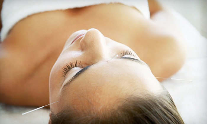 Schwan Chiropractic & Acupuncture - Multiple Locations: Four or Eight Face-Lift Acupuncture Sessions at Schwan Chiropractic & Acupuncture (Up to 87% Off)