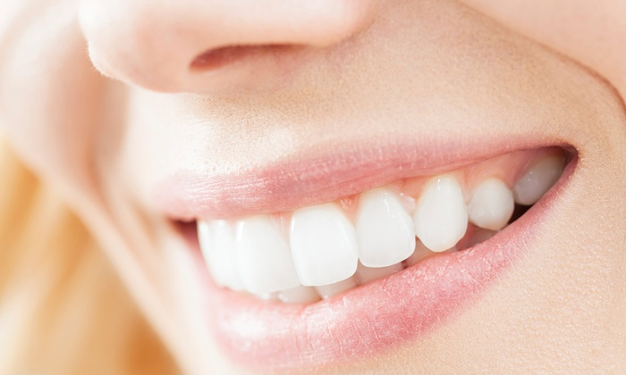 RTC Dental - Reston: $159 for an Exam, X-Rays, and Take-Home Whitening Kit at RTC Dental ($558 Value)