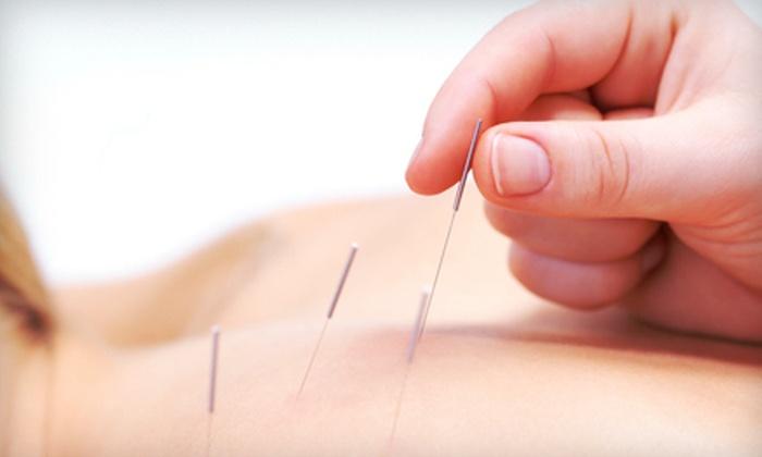 Acupuncture Associates of Denver - Belcaro: One or Three Acupuncture or Facial Acupuncture Treatments at Acupuncture Associates of Denver (Up to 85% Off)