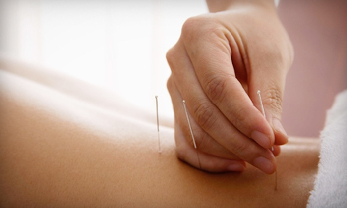 CST Wellness Center - The Museum District: One, Three, or Six Acupuncture Treatments with Consultation at CST Wellness Center (Up to 59% Off)
