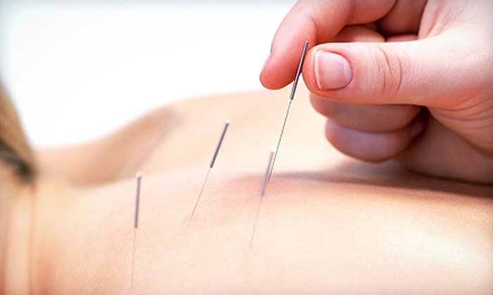 Michigan Acu Clinic - Ypsilanti: One Standard or Ear Acupuncture Session or Two Facial Acupuncture Sessions at Michigan Acu Clinic (Up to 73% Off)