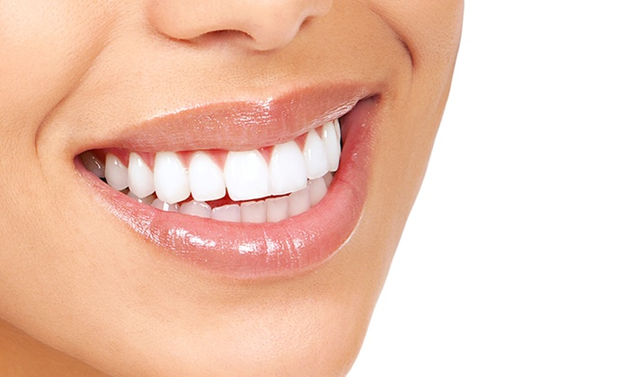 Quil Ceda Family Dental - Tulalip Reservation: Dental Exam and Cleaning with Optional Take-Home Whitening Kit at Quil Ceda Family Dental (Up to 81% Off)