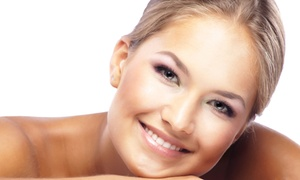 The Facial Room: One or Three Microdermabrasion Sessions at The Facial Room (Up to 52% Off)