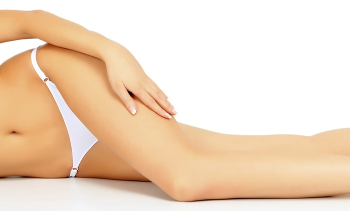Three Laser Thread Vein Removal Sessions for £59 at Allure Aesthetic Clinic (72% Off)