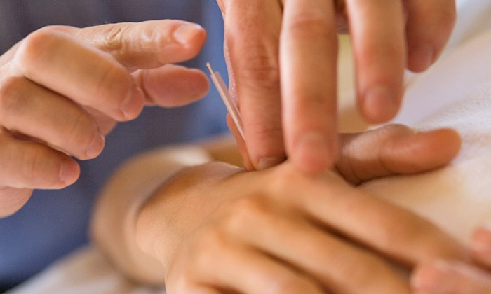 Greenlife Health Acupuncture - Calgary South: One Acupuncture Treatment with a Consultation at Greenlife Health Acupuncture (65% Off)