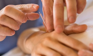 Milford Holistic Health Care Center For Women & Children: Two Acupuncture Fertility Treatments at Milford Holistic Health Care Center for Women & Children (55% Off)