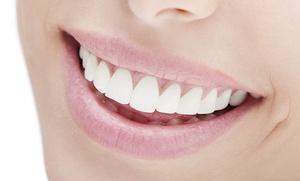 Férula de descarga rígida Michigan con limpieza bucal y revisión desde 59,90 € en Clínica Médico Dental O'Donnell