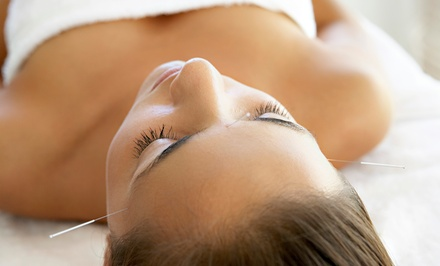 Acupuncture Session or 60-Minute Massage at Mayan Moon Healing (Up to 59% Off)