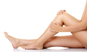 NYC Surgical Associates: Spider-Vein Treatment on Two, Four, or Six Areas at NYC Surgical Associates (Up to 83% Off)