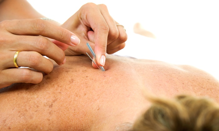 Healing Hands MedSpa - Multiple Locations: One, Three, or Six Acupuncture Treatments at Healing Hands MedSpa (Up to 82% Off)