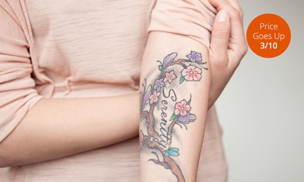 Three Laser Tattoo-Removal Treatments at LaserTouch Aesthetics (Up to 75% Off). Three Options Available.
