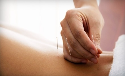Two or Three 60-Minute Acupuncture Sessions with an Initial Consultation at Acupuncture Connections (Up to 51% Off)