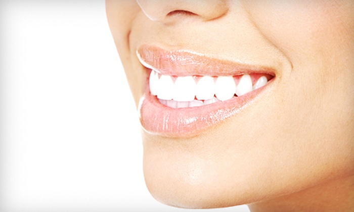 Bright Dental Center - Hoover: Invisible Simpli5 Braces for the Upper Teeth, Lower Teeth, or Both at Bright Dental Center (Up to 53% Off)