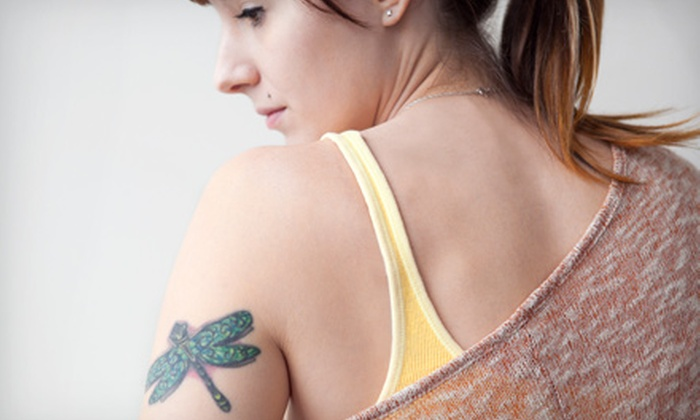 Sugar Land Laser Tattoo Removal - Imperial Medical Center: One, Three, or Six Laser Tattoo-Removal Sessions for a Small Area at Sugar Land Laser Tattoo Removal (Up to 68% Off)