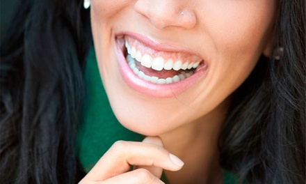 Dental Cleaning, X-rays, Exam and Take-Home Whitening Kit at Robert G Marx DDS & Associates (Up to 89% Off)