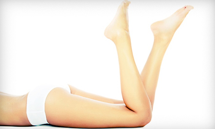 Skin Deep Laser & Vein - Camelot Court Shopping Center: One, Two, Three, or Four Spider-Vein-Removal Treatments at Skin Deep Laser & Vein (Up to 76% Off)