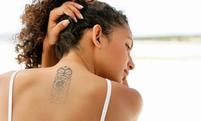 Three Sessions of Tattoo Removal at Three Sessions of Tattoo Removal (Up to 72% Off)