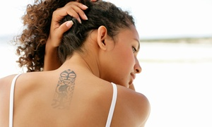 "Anticipation Tattoo Removal: Laser Tattoo-Removal Treatment for a 1""x1"", 2""x2"", or 3""x3"" Area at Anticipation Tattoo Removal (Up to 59% Off)"