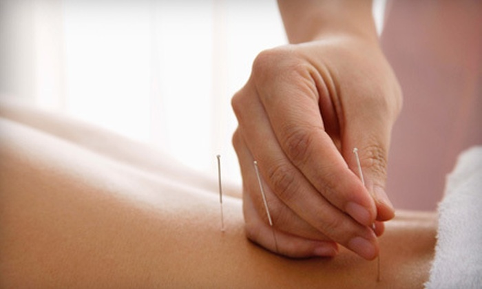 Dumas Chiropractic and Acupuncture - Five Points: One or Two Acupuncture Treatments with Initial EMI Consultation at Dumas Chiropractic and Acupuncture (Up to 57% Off)